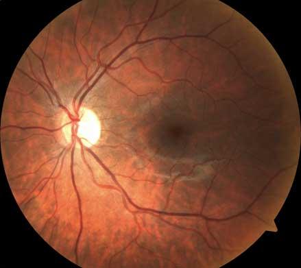 Bild av en normal näthinna tagen med ögonbottenkamera